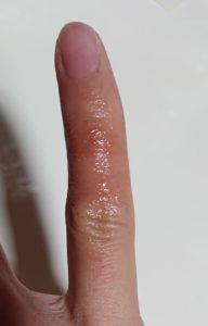 指ひび割れ